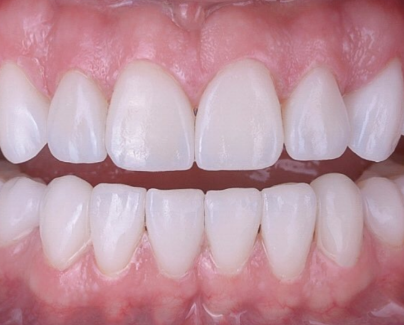 Full Mouth Zirconia Rehabilitation and Bite Correction