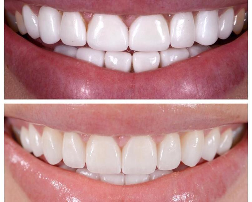 Full Mouth Bite & Aesthetic Correction