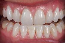 dental-lab-emax-laminates.jpg