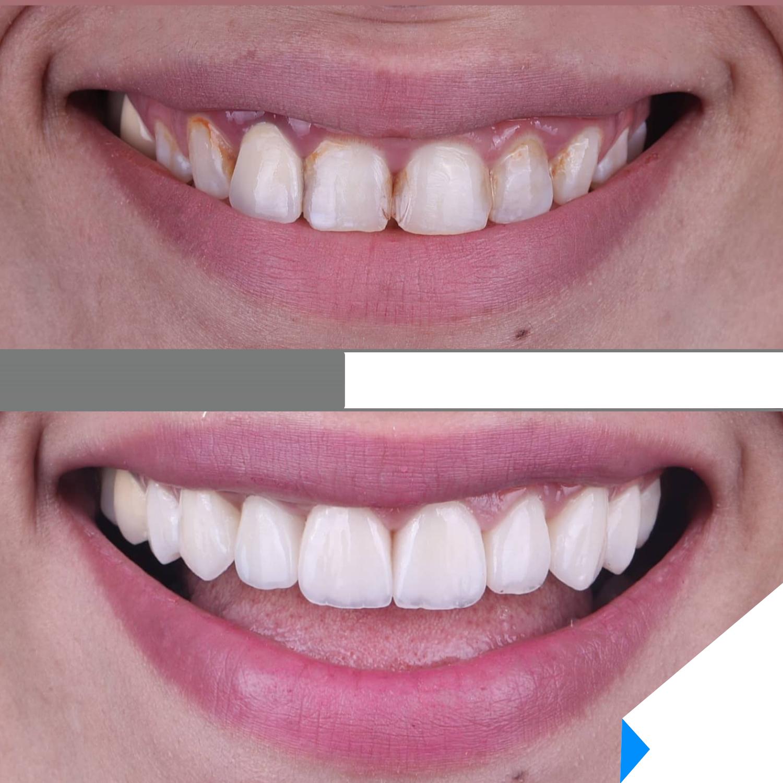 Smile makeover evaluation