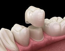 Dental-crown-3d-32-pearls-seattle-dentis