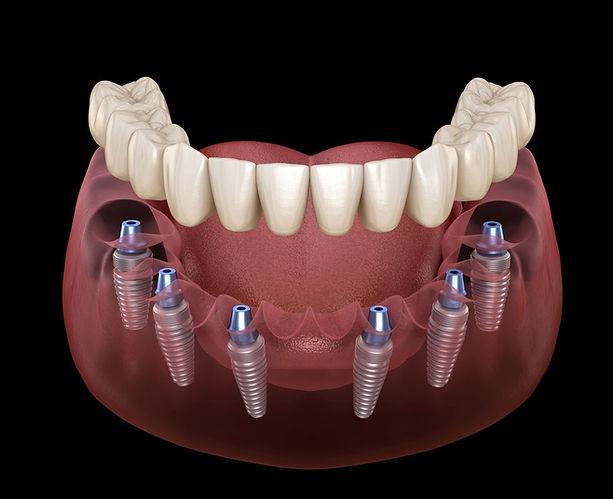 b2ap3_large_all-on-all-on6-dental-implan