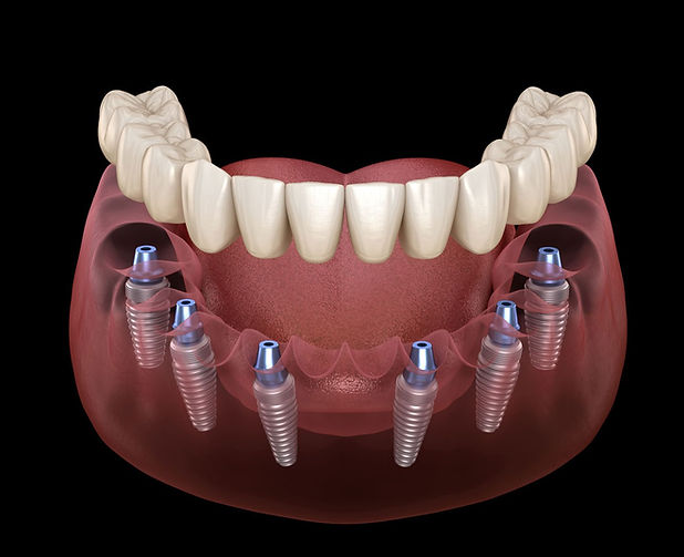 b2ap3_large_all-on-all-on6-dental-implan