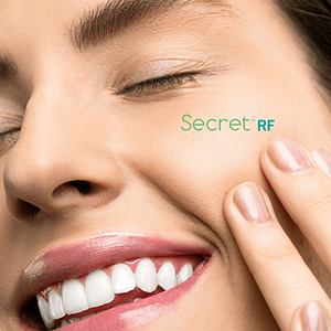 SECRET RF BEFORE & AFTERS