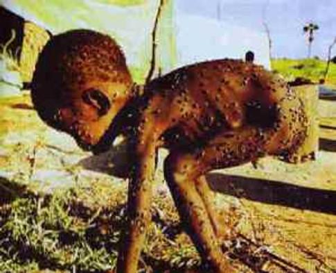 starving-child-1