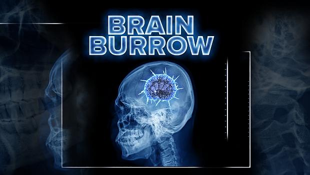 BrainBurrow4_HD.png