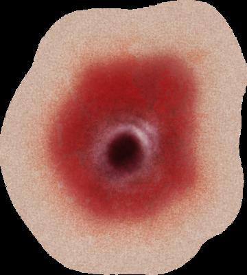 Wound transparent images