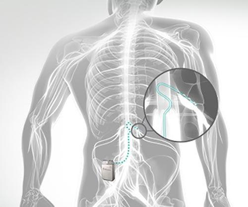 DRG Neurostimulation Therapy South Flori