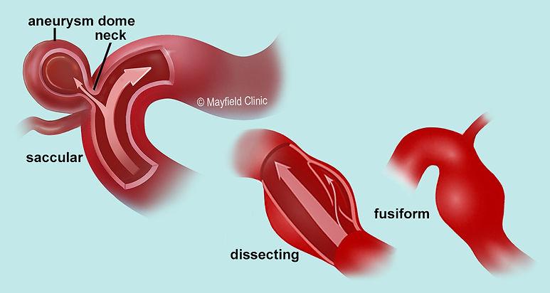 aneurysm types_TSBASG.jpg
