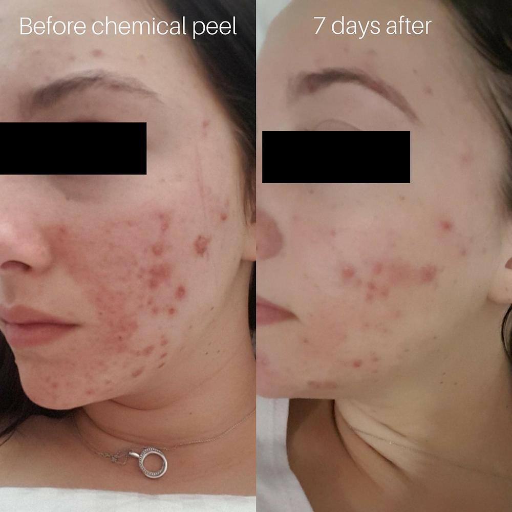 chemical peel results dianella perth