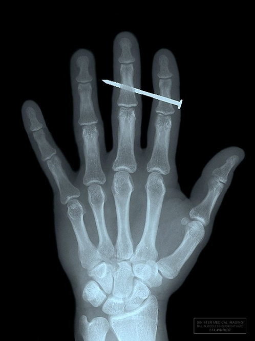 NAIL IN THE MIDDLE FINGER X-Ray