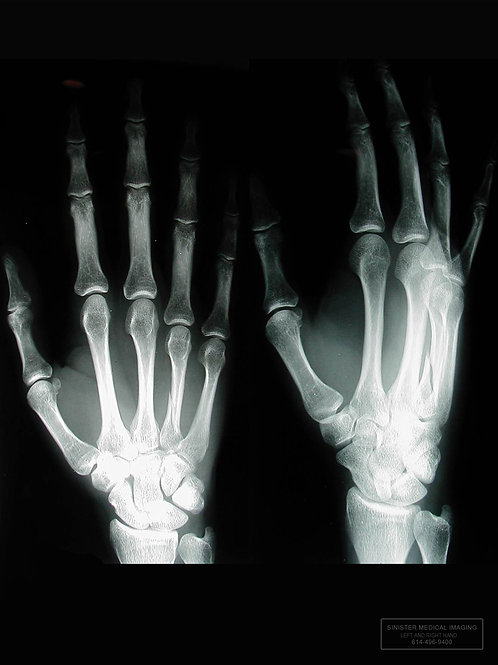 LEFT HAND DOUBLE  X-Ray
