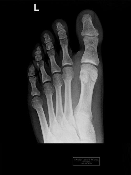 LEFT FOOT NO BROKEN BONES  X-Ray
