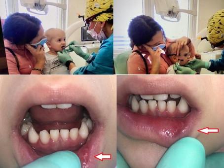 Dr. Mel Burchman Provides Photobiomodulation Consult to Slovenia Dentist via Teledentistry