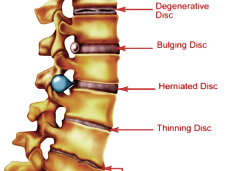 Back pain, sciatica, herniated, bulging & slipped discs are often due to degeneration.