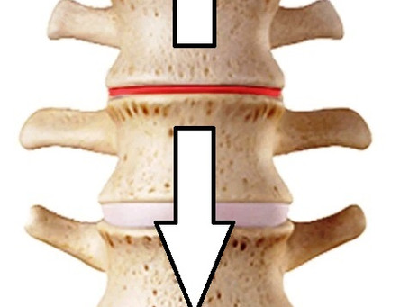Non-Surgical Spinal Decompression reported to give good or excellent relief of sciatic & back pain