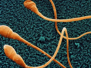 Sperm counts of Western men plummeting, study finds