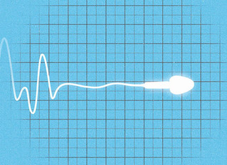 Male Infertility Crisis in U.S. Has Experts Baffled