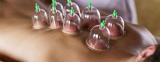 cupping-912-1280x500.jpg