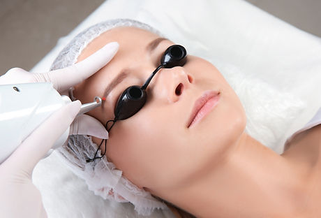 Young woman undergoing laser removal of