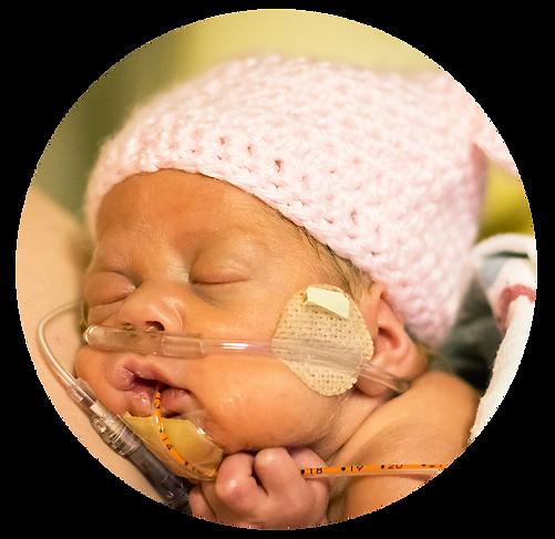 medolac-NICU-baby-donor-milk.png