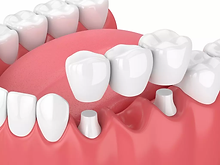 Traditional-Dental-Bridge.webp