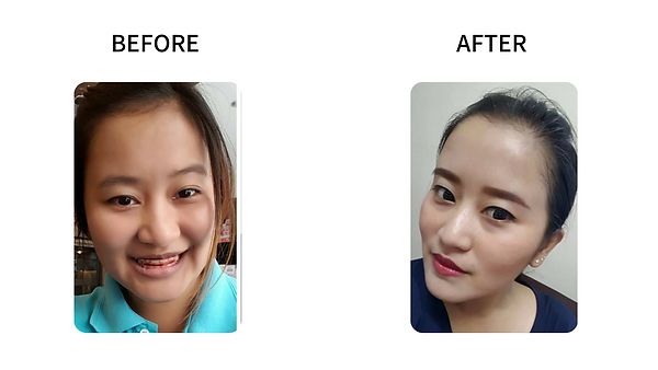 massester botox before after .png