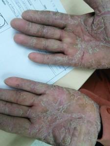 case 14 irritant contact dermatitis FU  (1)