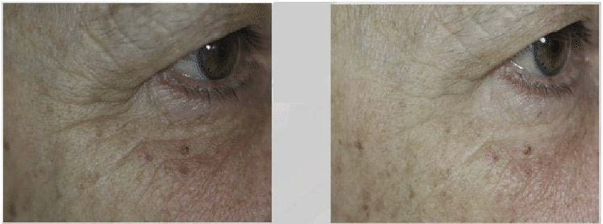 Evolution-of-crows-feet-wrinkles-after-treatment-on-Subject-13.png