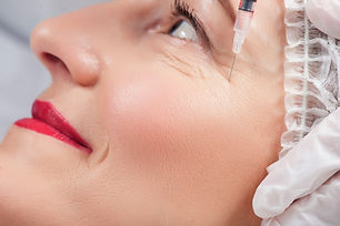 Natural Looks Botox is the treatment of facial wrinkles and skin laxity. Not only for wrinkle, botox can also reshape your face, lifting your jawline or even correct over sweating under arms. All for you : The whole bottle package The package with the most value, for the most safety and effectiveness. In this package you will get 50 unit of botox from the brand that you choose which is sufficient for the whole facial treatment. Contents of the entire bottle are used on your treatment. Tailor made treatment for natural looking results USA botox allergen - 12,000 THB German botox Xeomin - 12,000 THB Korea botox Hugel - 8,500 THB Package & Price At Revival clinic, we use only the best genuine imported botox from the official distributor for the safe and last long result. Using the cheap impurities botox can cause many side effect such as resistance or allergic reaction. With best price guarantee. Sweat botox : Botox treatment for Hyperhidrosis Botox is a safe and effective method for treating focal hyperhidrosis [excessive sweating], providing longer-lasting results than topical treatments without the necessity of invasive surgical procedures. It has become a widely recognised treatment for axillary hyperhidrosis (excessive underarm sweating). Botox works by blocking the secretion of the chemical that activates sweat gland. Price for both axillae USA Botox Allergan : 19,000 THB Korea Botox : 12,000 THB Post Treatment Do not manipulate the treated area such as rubbing massaging for 3 hours following treatment. Do not lie down for 4 hours after your Botox treatment. Do not perform activities involving straining, heavy lifting, or vigorous exercise for 6 hours after treatment. Do not do facial treatment of laser machine for 2 weeks after botox treatment If you have any question regarding to your activity after treatment please let us know, we are always happy to advise in any way we can.