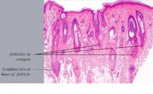histology alopecia areata