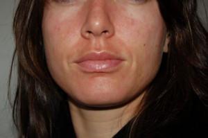 allergy face