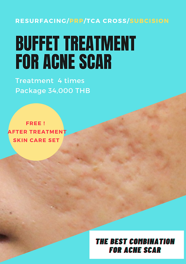 acne scar buffet package .png