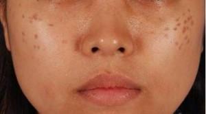 deep freckle