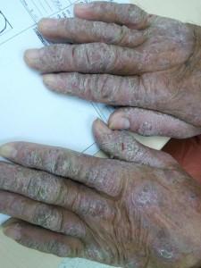 case 14 irritant contact dermatitis FU  (2)