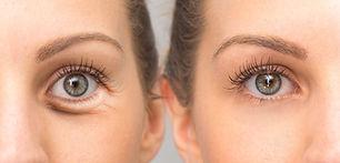 มาดอนน่าลิฟ มาดอนนาลิฟคือการกระชับผิวรอบดวงตาโดยไม่ต้องผ่าตัด และยังช่วยลดเลือนริ้วรอยเหี่ยวย่นรอบดวงตา ยกกระชับหนังตาบน ให้ดูเยาว์วัยขึ้น เทคโนโลยี Smart Skin system ออกแบบมาเพื่อ Madonna Eye Lift ลดหนังตาบวม หย่อนคล้อย สัญญาณแห่งวัยรอบดวงตาให้คุณดูสดใส ไม่เหนื่อยล้า ขั้นตอนการทำมาดอนนาลิฟ ก่อนการรักษา เป็นขั้นตอนการทำความสะอาดผิวรอบดวงตาและมาร์คด้วยยาชาเป็นเวลา 30 นาที. ขั้นตอนการทำเลเซอร์นั้นสั้นใช้เวลาเพียงไม่กี่นาที และไม่มีความเจ็บปวดแต่อย่างใด ควรทำการรักษา 3-5 ครั้งทุก 3-4 สัปดาห์ เพื่อให้ผลลัพท์เป็นที่น่าพอใจ การดูแลหลังทำ มาดอนน่าลิฟ เลี่ยงแดดจัด ใส่แว่นกันแดดเมื่อออกข้างนอกเป็นเวลา 1 สัปดาห์ ทาครีมให้ความชุ่มชื้นอย่างน้อย 2 ครั้งต่อวันเป็นเวลา 1 สัปดาห์ งดทาครีมบำรุงรอบดวงตาเป็นเวลา 1 สัปดาห์ พยายามหลีกเลี่ยงการขยี้ตาเป็นเวลา 1 สัปดาห์ เลี่ยงการแต่งเครื่องสำอางค์รอบดวงตาเป็นเวลา 1 สัปดาห์ ราคารายครั้ง 8,000 บาท แพ็คเกจ 30,000 บาท /4 ครั้ง