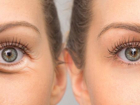 Around the eyes treatment program