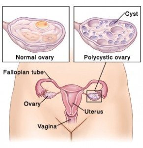 This illustration shows a view of female reproductive anatomy with a call-out of a polycystic ovary. References and research: 1.  KDAL #5A11683 (previously picked up uterus from KDAL #4A11360) 2.  KDAL  #5C1916 3.  Consultant Dr. Seth B. Ammerman, MD