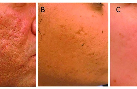 Treatments for Acne Scar Removal