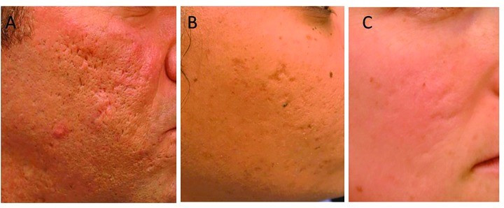Examples of icepick, boxcar and rolling acne scars