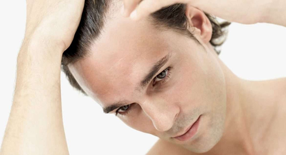 hair loss.jpg