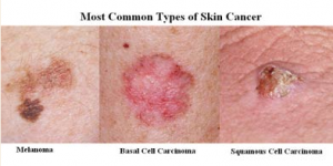types_of_skin_cancer