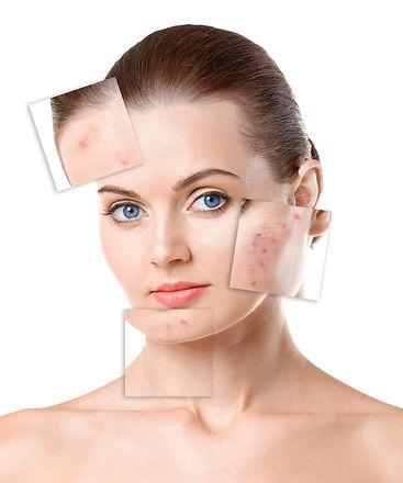 acne treatment .jpg