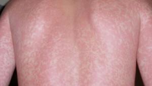 acute retro viral syndrome