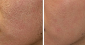 Large-pores-using-Fractional-before_and_after_l