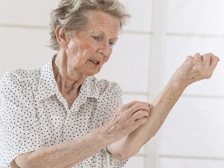 การดูแลผิวแห้ง.ในผู้สูงอายุ