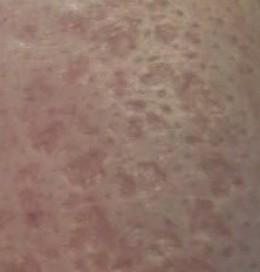 boxcar scar