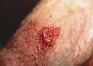 bowenoid papulosis