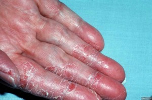 irritant contact dermatitis