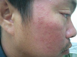case facial dermatitis before